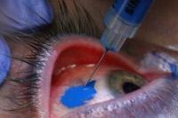 Tetování oka